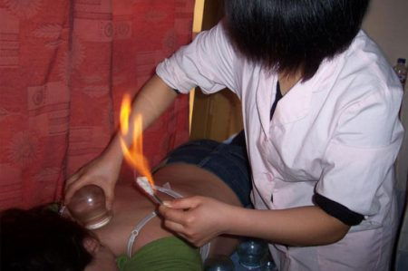Cupping at Peaceful Spirit Acupuncture, Ithaca NY